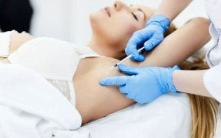 Лечение гипергидроза «диспортом» – особенности и правила, подготовка и реабилитация, противопоказания