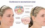 Прыщи на лице от нервов и стресса – могут ли появиться и как лечить: лучшие способы и средства