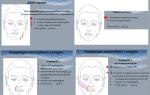 Дмаэ-мезотерапия – препараты и эффект процедуры, техника выполнения и преимущества