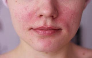 Масло касторовое от прыщей – применение для проблемной кожи лица и его свойства, рецепты масок