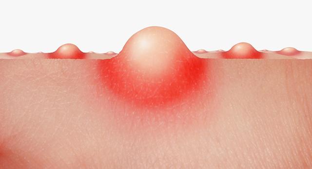 Папуло-пустулезная форма акне – что это такое и какие симптомы, причины и эффективные способы лечения