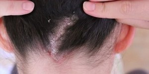 Микоз волосистой части головы – причины и симптомы, разновидности недуга, диагностика и лечение