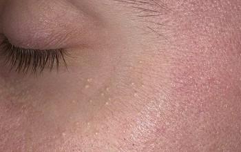 Милиумы на лице – что это такое и как избавиться, причины и лечение просянки в домашних условиях
