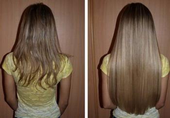 Витамин В в ампулах для волос – как правильно использовать