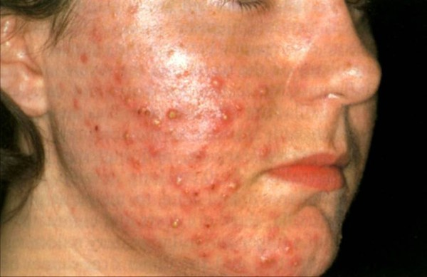Гнойные прыщи на лице – почему появляются высыпания и как избавиться от них: причины и лечение