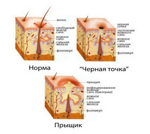 Вульгарные угри – что такое вульгарис акне и его степени тяжести, причины сыпи и способы лечения