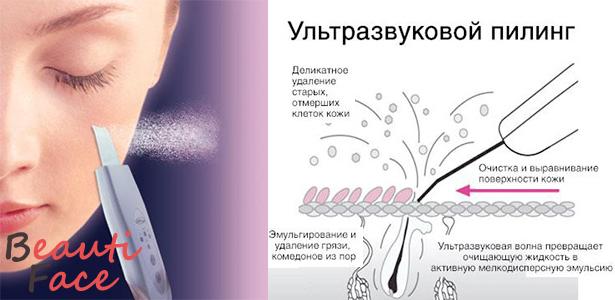 Гель для ультразвуковой чистки лица – обзор лучших средств-проводников для УЗ-пилинга, описание и свойства