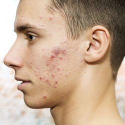 Большой прыщ на лице – как избавиться от больших угрей: способы и методы лечения и профилактики
