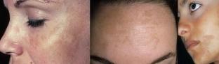 Последствия химического пилинга лица и осложнения – что делать, если появился герпес, отек или сыпь