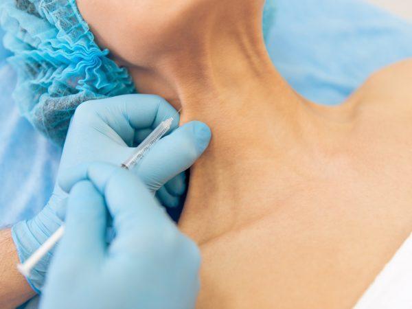 Тредлифтинг губ – особенности увеличения их мезонитями, суть процедуры и результат, плюсы и минусы