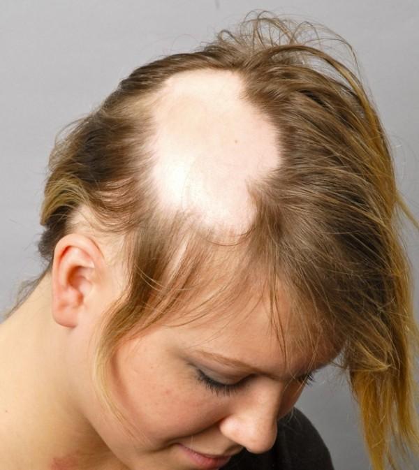Аутоиммунная алопеция: причины заболевания и лечение выпадения волос