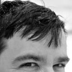 Средство от перхоти – лучшие аптечные и домашние способы лечения волос и кожи головы