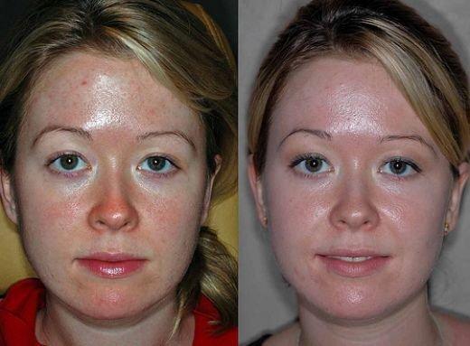 Пировиноградный пилинг для лица – что это такие и состав, особенности и эффект зеленой чистки