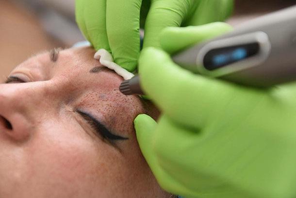 Плазмолифтинг лица – что это такое, эффект от плазменного омоложения, противопоказания и подготовка