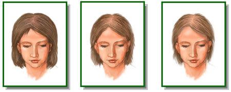 Телогеновое выпадение волос – причины и диагностика диффузной алопеции, способы лечения