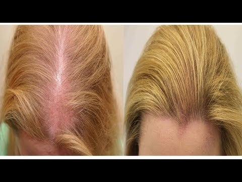 Масло от выпадения волос – рейтинг лучших средств от облысения и способ применения