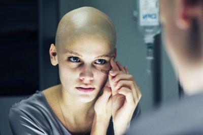 После химиотерапии выпадают волосы – что делать и как избежать облысения