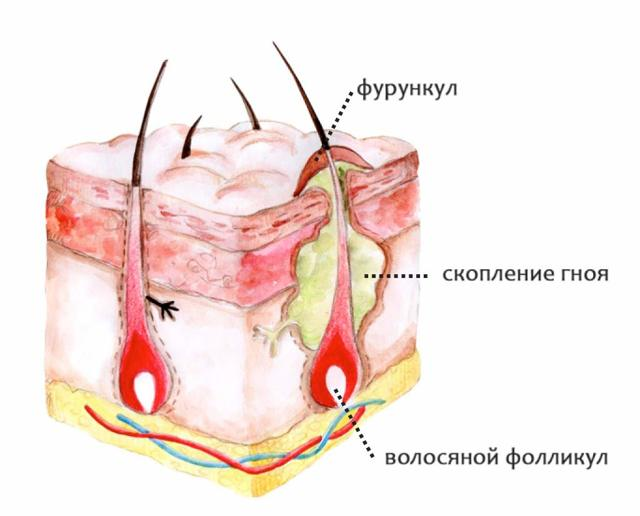Болючие прыщи на лице – причина появления, почему болят, как избавиться и чем лечить, обзор средств