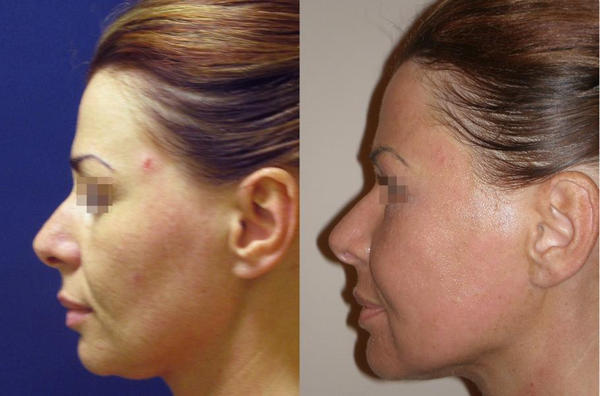 Височный лифтинг – что это такое, особенности темпоральной подтяжки лица, за и против, советы косметологов