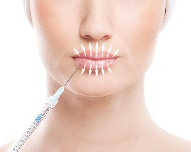 Ботокс губ – выполнение уколов для увеличения, как поднять уголки и сколько единиц нужно