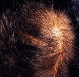 Андрогенетическая алопеция у женщин и мужчин: симптомы и способы лечения