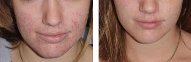 Механическая чистка лица – что это такое, плюсы и минусы, как делается пилинг у косметолога и в домашних условиях