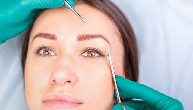 Подтяжка бровей нитями – что такое нитевой лифтинг лба, особенности процедуры и противопоказания