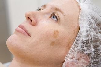 Витамины от пигментных пятен на лице – какие нужны и как их использовать для кожи, рецепты масок и кремы