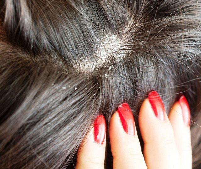 Маска для волос с содой – рецепт приготовления в домашних условиях, польза и вред
