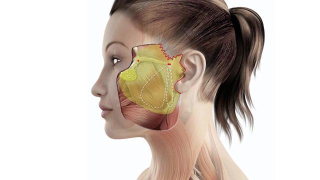 МАКС-лифтинг – что это такое и в чем суть процедуры, особенности подтяжки отдельных частей лица