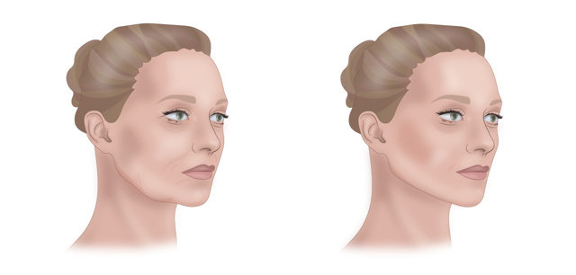 Как подтянуть овал лица – эффективные средства и процедуры в домашних условиях после 40 и 50 лет