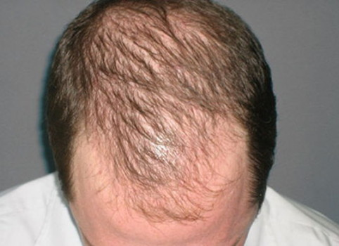 «Алерана» – шампунь против выпадения волос: состав, инструкция и результаты