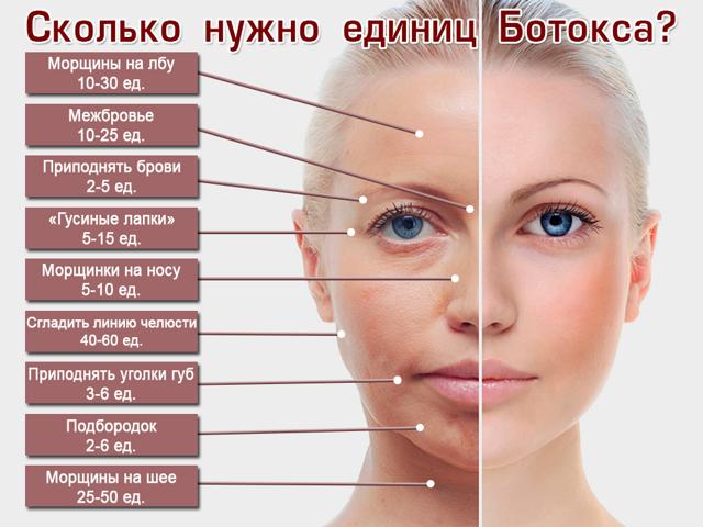 Сколько держится «Ботокс» – как долго длится эффект на лице, что влияет на продолжительность