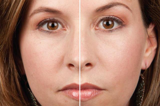 Мазь и гель «Солкосерил» в косметологии – инструкция по применению для лица и от морщин, состав и отличия