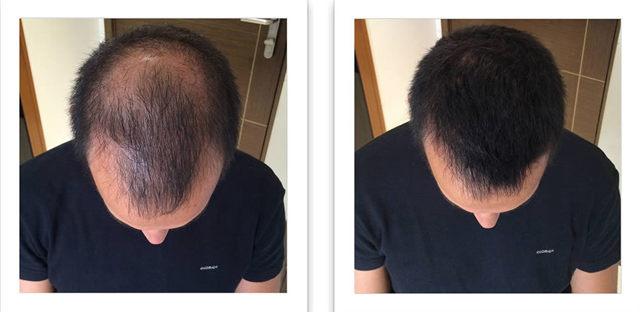 Восстанавливающая маска для волос «Лореаль» – инструкция по применению, плюсы и минусы