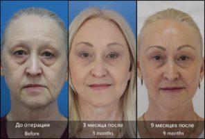Подтяжка нижней трети лица и шеи – хирургическая и СМАС-лифтинг, плюсы и минусы, противопоказания