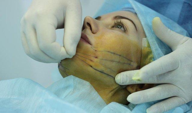 Реабилитация после нитевого лифтинга – как ухаживать за лицом и убрать отеки, побочные эффекты подтяжки
