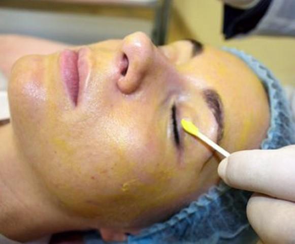 Желтый пилинг для лица – что это такое, ретиноевая химическая чистка в домашних условиях, противопоказания
