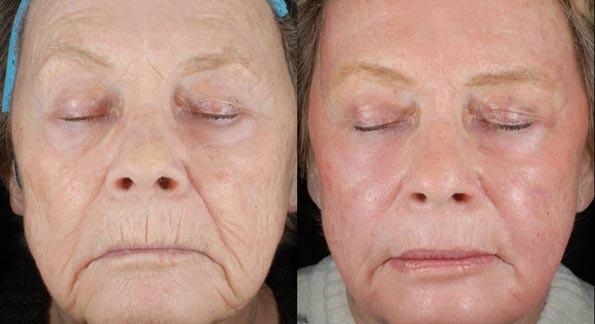 Лазерная подтяжка лица – что это такое, кому показан такой лифтинг, плюсы и минусы процедуры