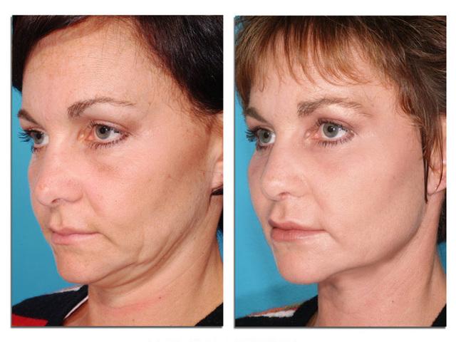 Как подтянуть кожу лица в домашних условиях быстро и без операции – эффективные процедуры и средства