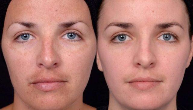 Пилинг «Алголоджи» для лица – все о химической чистке algologie для чувствительной кожи и против акне