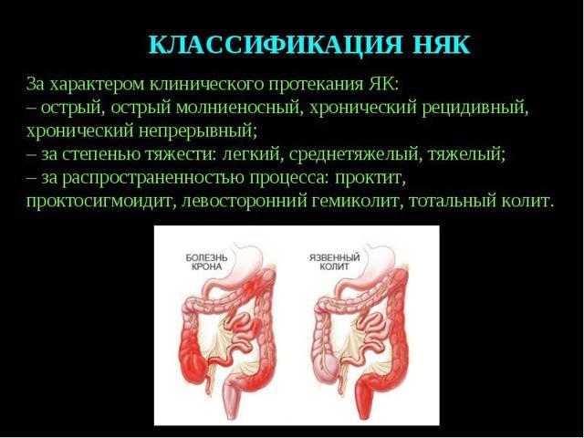 Прыщи из-за проблем с кишечником и желудком – причины появления и способы лечения лица