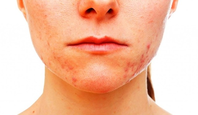 Прыщи гормональные на лице у женщин – как выглядят и чем лечить, какие гормоны их вызывают