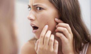 Водянистые прыщи на лице, на носу и губе – причины появления и способы лечения, профилактика