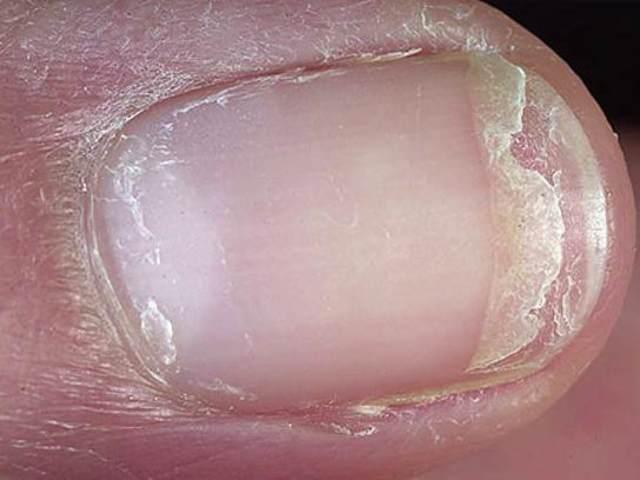 Выпадают волосы и слоятся ногти – причины и способы лечения