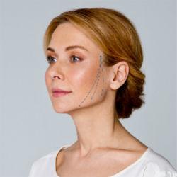 Подтяжка подбородка нитями – кому можно делать нитевой лифтинг нижней части лица и в чем суть процедуры