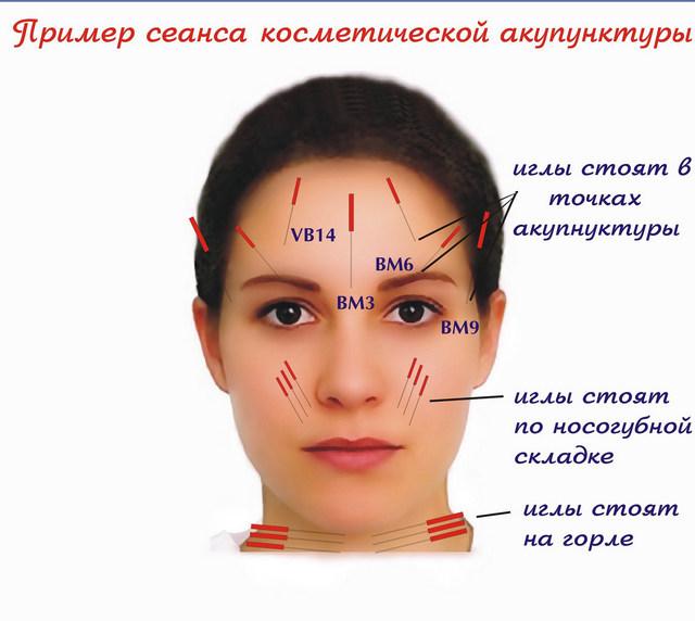 Акупунктурный лифтинг лица – омоложение лица иглоукалыванием, особенности и противопоказания