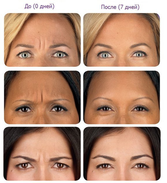 Ботокс вокруг глаз – можно ли колоть препарат в данную зону и сколько единиц для нее нужно