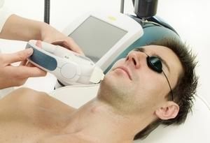Чистка лазерная лица – как делать фракционный и глубокий пилинг кожи лазером, шлифовка рубцов