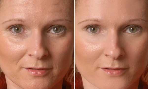 «Блефарогель» 1 и 2 для лица – инструкция по применению от морщин и для глаз, состав и показания в косметологии
